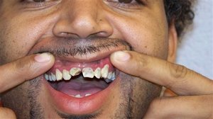 Anthony McCoy displays damaged teeth after Sherriff illegally forcibly extracts his gold grill