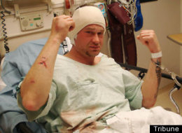Ronald Bell in stitches after being attacked by viscous and brutal cop...