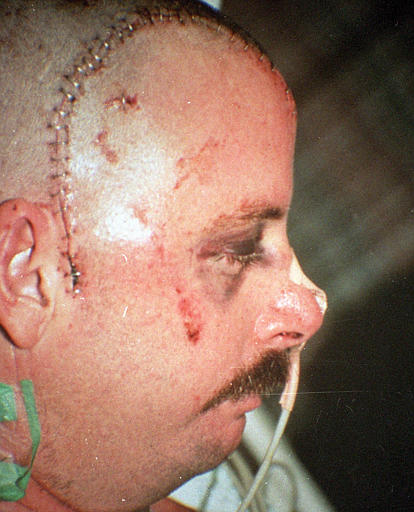 Reginald Denny suffered life long injuries from LA KKKop inspired riots in 1992...