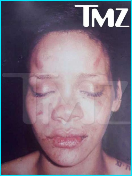 """Rihanna Smacked-Up By Chris 'Beater"""" Brown..."""