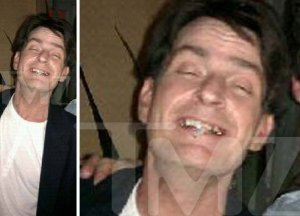 Toothless Charlie Sheen...coked-up out of his mind!!!
