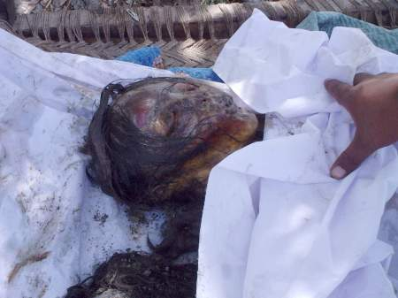 An Honor killing victim burned alive