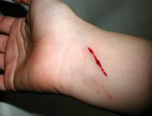 Slit wrist is a common suicidal attempt