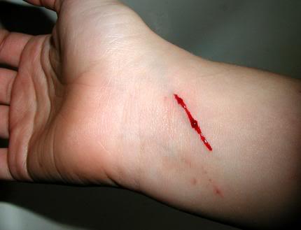 Slit wrist is a common suicidal attempt